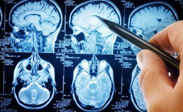 Beyin Anevrizması Nedir?