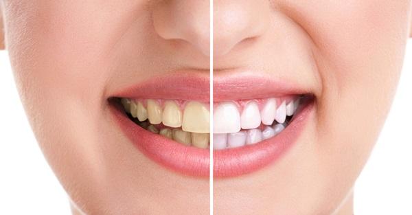 beyaz_dişler